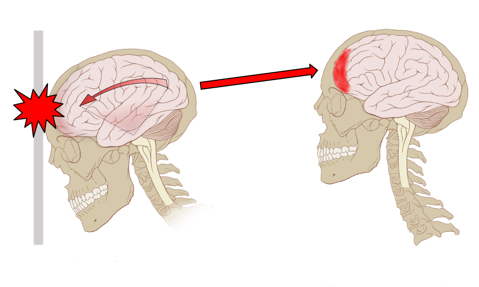 Concussion_Anatomy_02